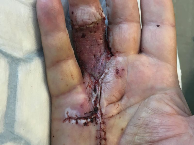 Hand affected by Dupuytren's disease, shown seven days after the Dermofasciectomy during dressing change