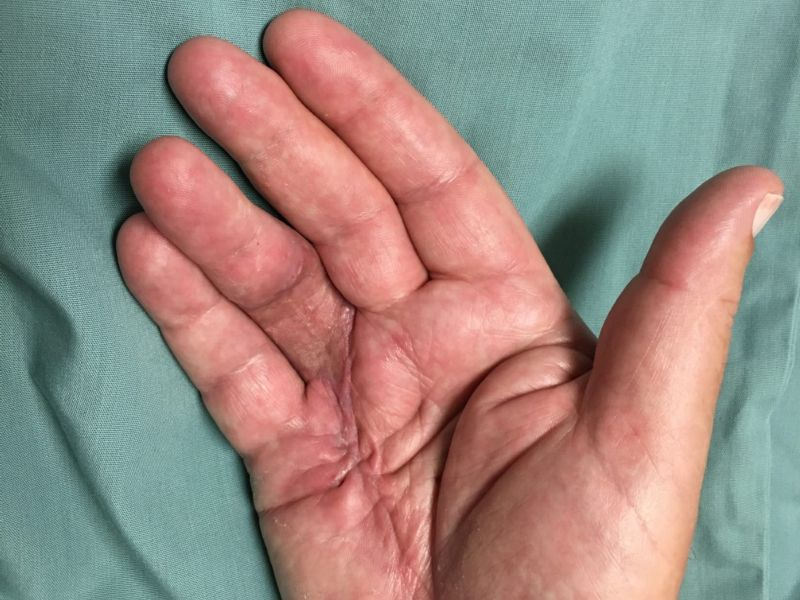 Hand affected by Dupuytren's disease, shown six weeks after the Dermofasciectomy