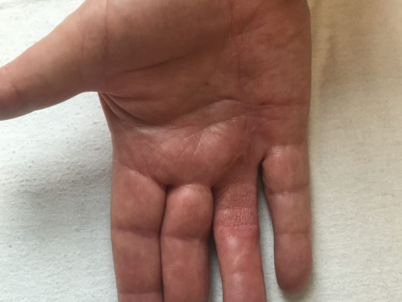 Hand affected by Dupuytren's disease, shown six months after the Dermofasciectomy